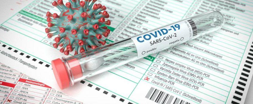 Salud reporta dos muertes y 614 nuevos casos positivos por COVID-19