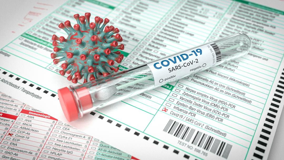 Salud reporta 20 muertes, 202 casos confirmados, 86 probables y 182 sospechosos adicionales por COVID-19