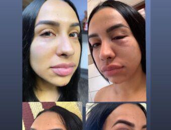 Abogadas aseguran que expresiones de Juanma López en entrevista televisiva constituyen una violación a orden de protección